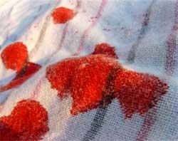 Як видалити кров з одягу