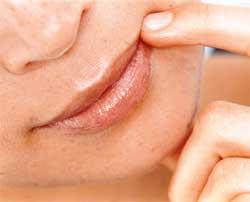 Як боротися із заїдами на губах