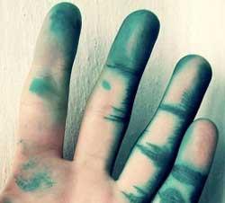 Як і чим відмити зеленку зі шкіри